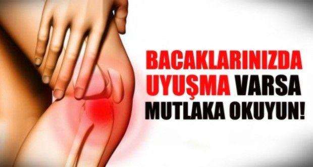 Bacaklarınızda uyuşma varsa ciddiye alın. Uyuşmanın bir çok nedeni olabilir. Uyuşma nedenleri...  %66#039;sı Bel Fıtığı : Bel omurları arasında bulunan ve disk adı verilen yapının fıtıklaşarak kalça ve bacağa giden sinir köklerine bası yapmasıdır. Tedavisinde istirahata ve kas gevşetici ilaçlara rağmen hastanın şikayetleri devam ediyorsa fizik tedavi uygulanmalıdır. Fizik tedaviye rağmen hastanın ağrıları devam ediyorsa veya geriletilmeyen bir güç kaybı, bacakta incelme, dayanılmaz ağrılar…