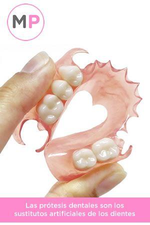 Protesis dentales, sustituyendo a los dientes con materiales de alta calidad, no te quedes sin dientes y mira aquí cómo funcionan estas prótesis: http://www.medicoplastica.com/odontologia/odontologia-reconstructiva/protesis-dentales