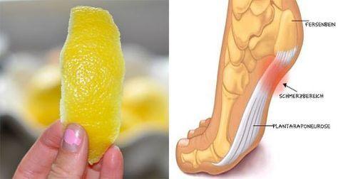 Wir alle wissen, dass Zitronen sehr gesund sind. Jeden Tag Zitronen zu konsumieren bietet uns viele Vorteile für die Gesundheit und die Zitrone ist die am meisten kultivierte Frucht der Welt. Sie ist voll von Mineralien und Vitaminen wie C, A, B1, B6, Magnesium, Folsäure, Pektin. phosphor, Kalium