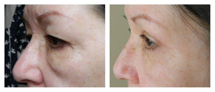 collage voor en na ooglidcorrectie zijkant #ooglidcorrectie
