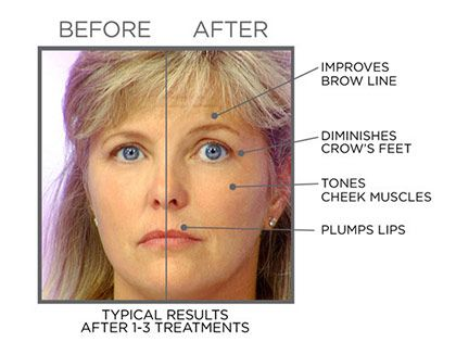 FaceMaster Microcurrent Facial Tone Machine. Facelift without Surgery.