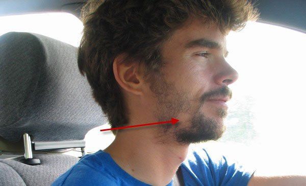 Photo of a man with a patchy beard. More here: http://www.growabeardnow.com/fix-patchy-beard/