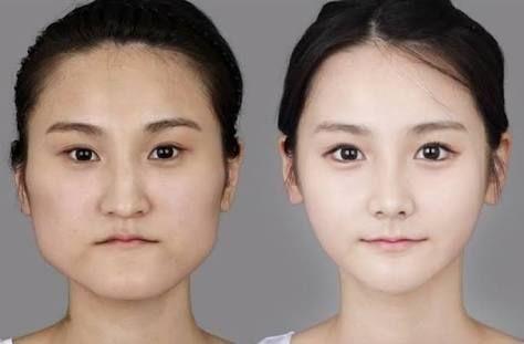 Korean beautiful woman who performed plastic surgery