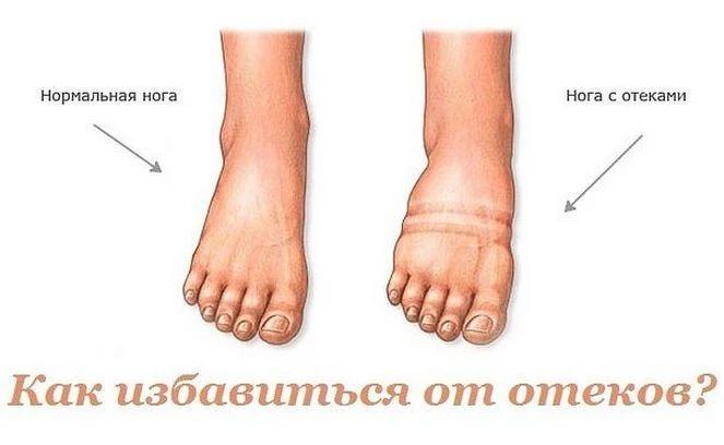 Как избавиться от отеков?  В ответе на вопрос: как убрать отеки ног, лица (особенно под глазами) - всегда поможет народная медицина. Пусть эффект не так... - Умные Советы - Google+