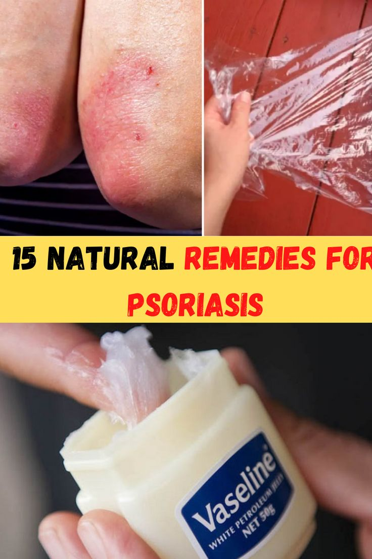 vaseline for psoriasis