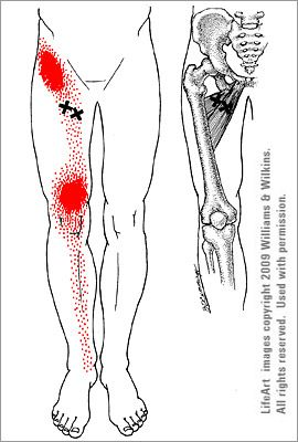 119 best images about HIP REHAB B/4 AND AFTER SURGERY on ...