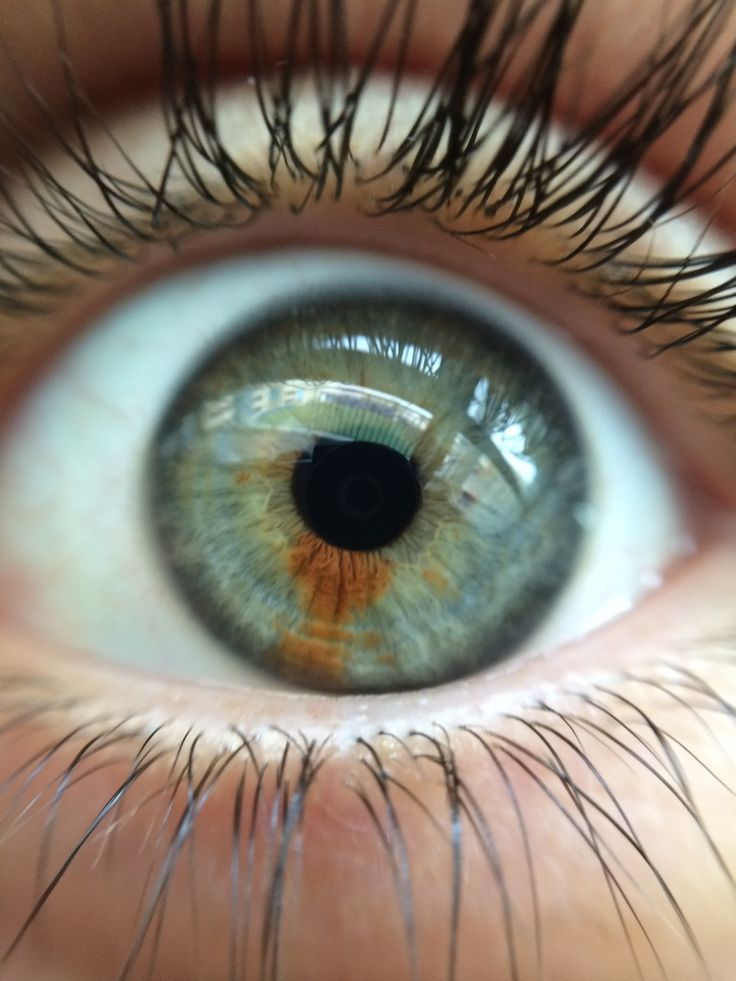 Opinion What Does Your Eye Colour Say About You Rare