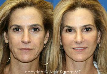 It is essential that your cosmetic surgeon follows a stringent code of principle…