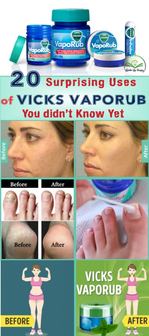 20 Surprising Uses of Vicks VapoRub You didn't Know Yet #vicks #vicksvaporub  #know  #skincare #beauty #uses