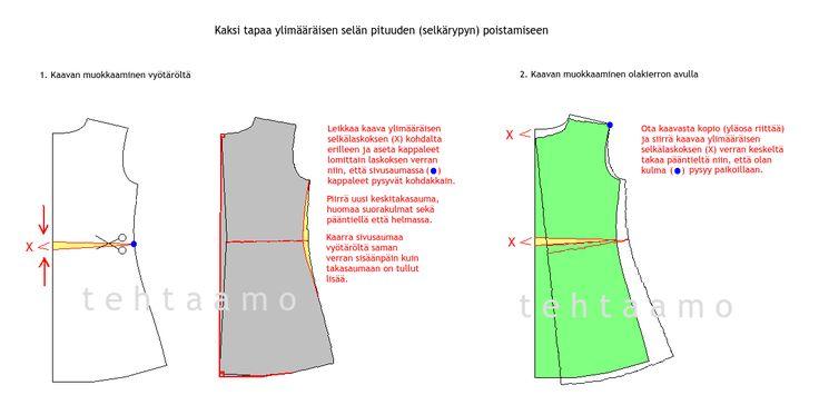 t e h t a a m o: Kaksi tapaa ylimääräisen selän pituuden (selkärypyn) poistoon