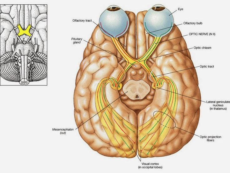 PAINTS and PISTOLS: What IS Optic Nerve Hypoplasia? - Everything I Know Part 2 -