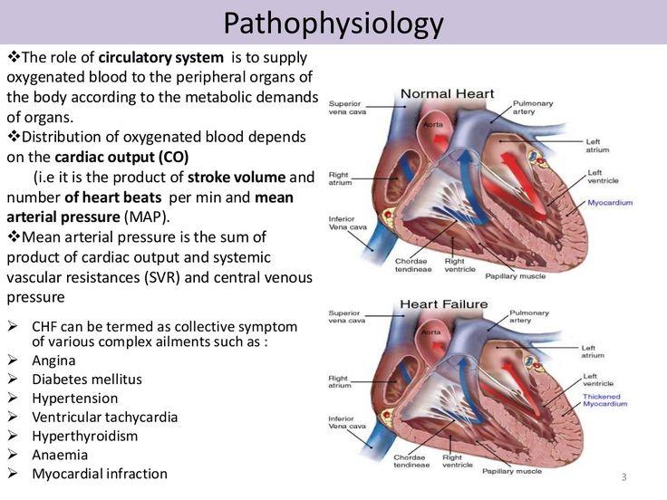 17 best ideas about Congestive Heart Failure Pathophysiology on ...