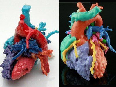 3D-printed heart models can treat patients better