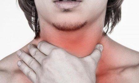 Top 15 Herbal Remedies Of Tonsillitis