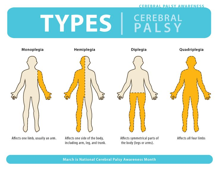 Cerebral Palsy (2): Everyone in this world has their own story this is also the case for people with cerebral palsy. Here is a website that tells different stories with people with CP and other who's life been changed from CP, very powerful.    http://www.cerebralpalsyworld.com/stories.aspx