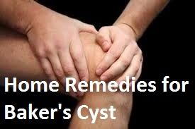 How To Treat Bakers Cyst At Home - Home Remedies For Baker's Cyst     A Baker's cyst also known as a popliteal cyst is a medical condition ...