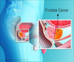 Prostate Cancer Treatment Rates Drop 42 Percent