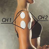 Electrode placement for shoulder pain #2