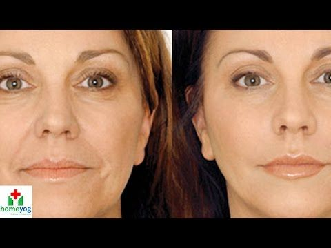 How to Fight Wrinkles - Home Remedies For Wrinkles on Face, Forehead, Neck and Eyes - YouTube