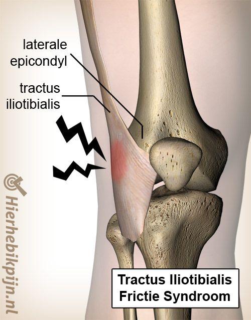 knie buigen pijn knieholte