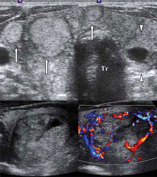 Multinodular goitre. A. Transverse dual ultrasound image shows enlargament of thyroid lobes and isthmus and multiple hyperechoic solid nodules with uniform thin halo (arrows). Mixed solid and cystic thyroid nodule in the left lobe. Tr: tracheal gas shadow. B. Transverse sonogram and color-doppler mode scan show a well-defined isoechoic thyroid nodule with thin complete hypoechoic halo, intranodular cystic/colloid space and peripheral vascularity, findings indicative of a hyperplastic nodule.