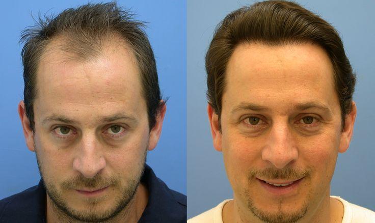 alopecia areata adalah pdf free