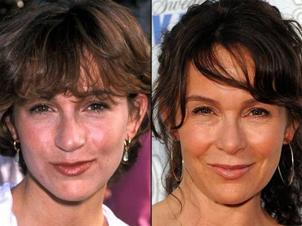 Jennifer Grey Plastic Surgery - Good Nose Job & Facelift - http://plasticsurgerytalks.com/jennifer-grey-plastic-surgery-before-after/
