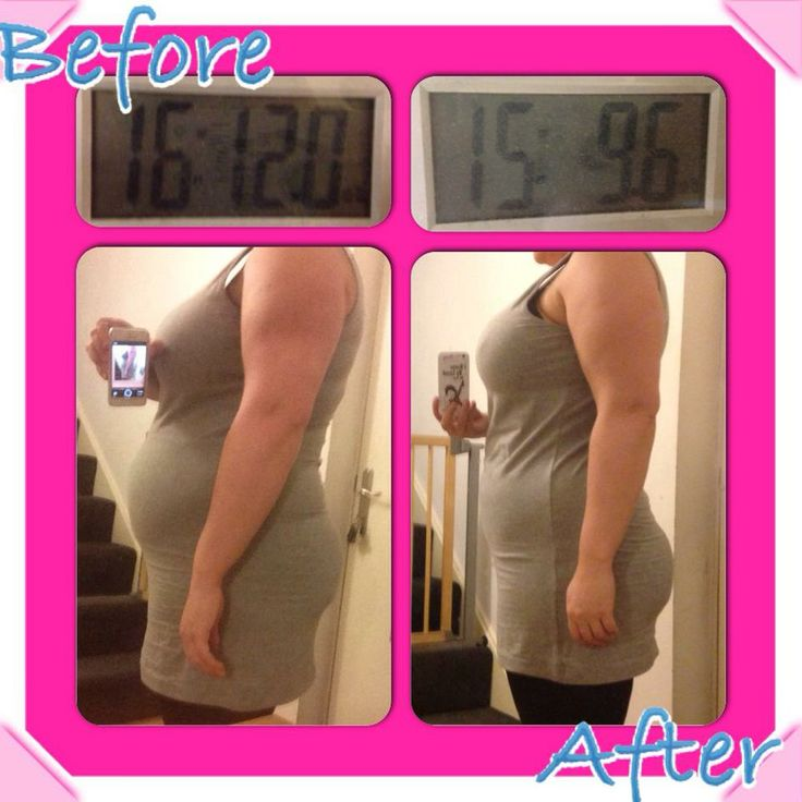Should done hormone therapy for weight loss cincinnati ohio idea
