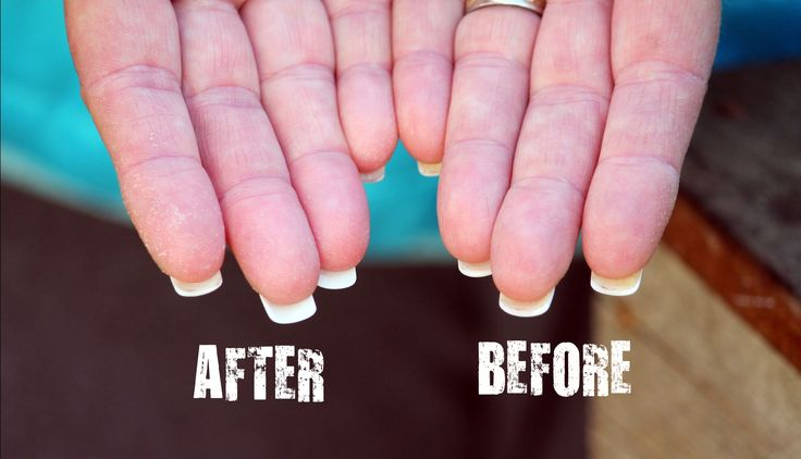 How to Clean & Brighten the Underside of Your Fabulous {Fake} Nails!   Hydrogen Peroxide, Baking Soda & doTERRA Lemon essential oil    Simply mix a paste, thick enough to sit on a brush and add 4 or 5 drops of Lemon essential oil for brightening!    Brush em.    The End.