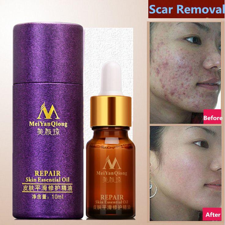 Meiyanqiong cuidado de la cara crema de eliminación de cicatriz estrías tratamiento cuidado de la piel para blanquear manchas de acné eliminar el acné facial aceite esencial