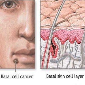 Best Natural Treatment For Basal Cell Carcinoma
