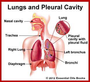 Pleuritis Natural Cure