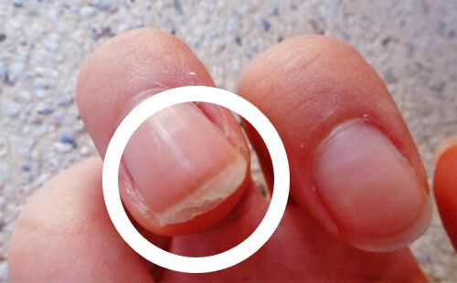 Why do nails peel?  Causes, treatments and solutions