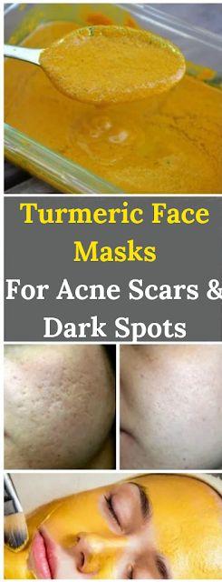 Turmeric Face Masks For Acne Scars & Dark Spots #t…
