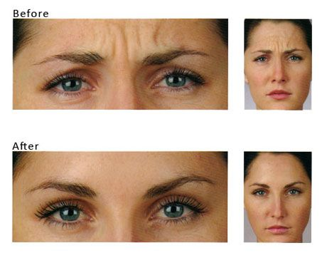 http://www.londoncityskinclinic.com/treatments/botox/ - Botox Injections London, Botox Treatment London, Botox London, Botox Beaconsfield, Botox Treatment Beaconsfield