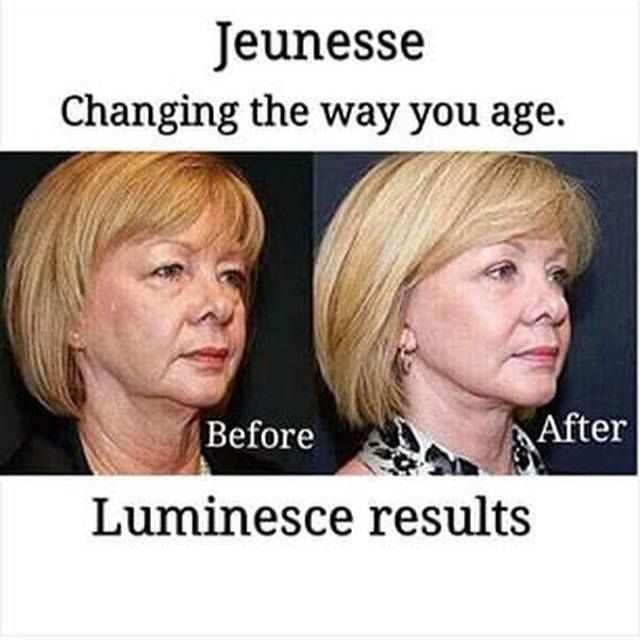 Results with the anti aging Luminesce Skincare See the difference for yourself! www.vivre121.jeunesseglobal.com/PersonalCare.aspx?id=1