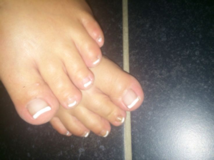 French ongle pied gel blanc