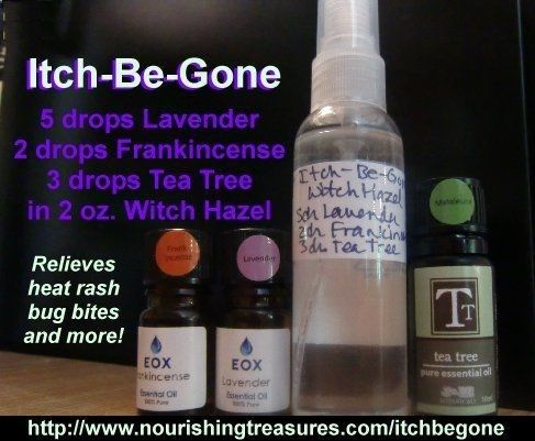 Itch-Be-Gone essential oil recipe relieves heat rash, bug bites, and more! 5 drops Lavender essential oil, 2 drops Frankincense and 3 drops Tea Tree oil. Mix with 2 ounces witch hazel in a spray bottle.