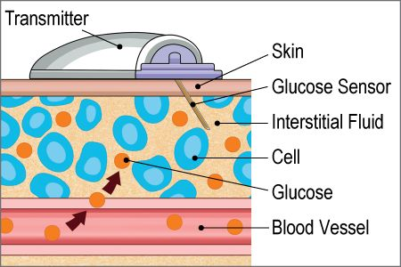 Continuous Glucose Monitoring System (CGMS): Diabetes Center