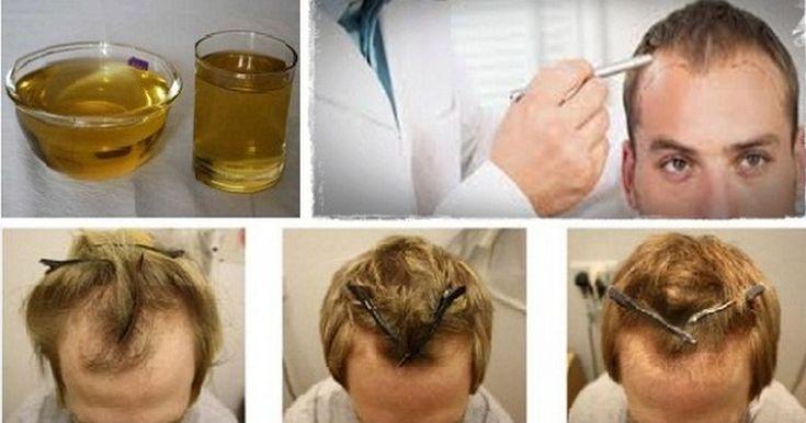 ის მდიდარია ვიტამინით E, გარდა ამისა ის ანტიბაქტერიულ საშუალებადაც ითვლება და მასში შემავალ ნივთიერებს თმის აღდგენა შეუძლიათ.
