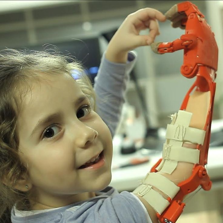 "A Global Network Of Passionate Volunteers Using 3D Printing To Give The World A ""Helping Hand."""