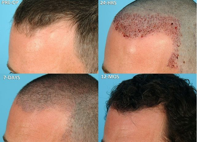 Why is FUE hair transplant treatment better. For more details read this blog.