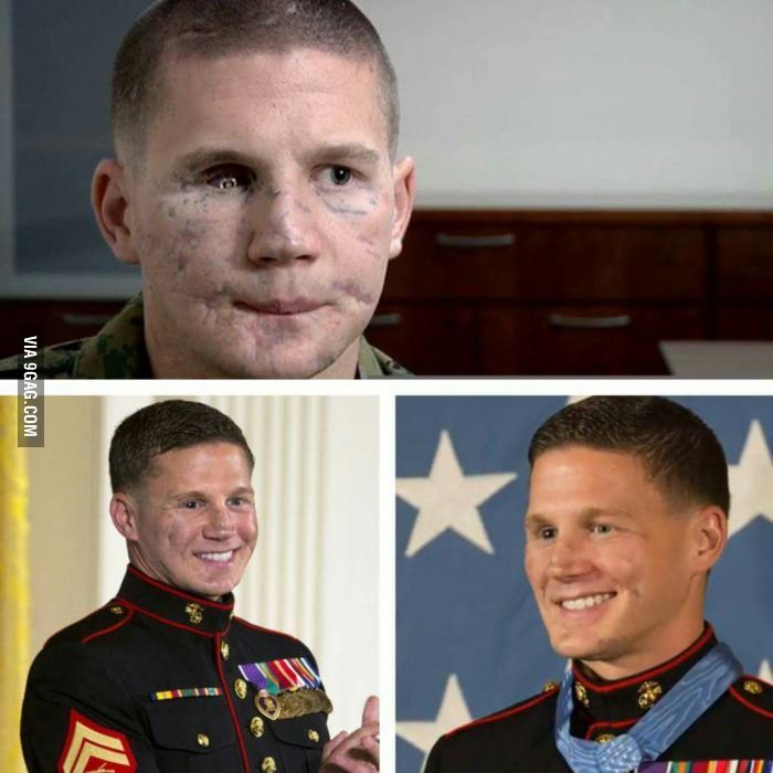 This guy jumped on top of a grenade to save his mates. The real MVP Kyle Carpenter. He had facial reconstruction surgery