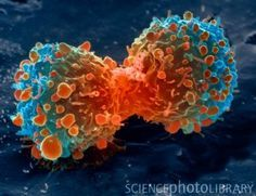 Lung cancer cell division. Coloured scanning electron micrograph (SEM) of a lung cancer cell during cell division (cytokinesis). The two daughter cells remain temporarily joined by a cytoplasmic bridge (centre). Cancer cells divide rapidly in a chaotic, uncontrolled manner. They may clump to form tumours, which invade and destroy surrounding tissues.