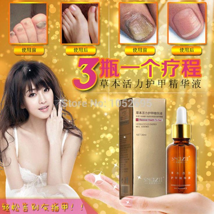 NEW!!!Fungal Nail Treatment Essence Nail and Foot Whitening Toe Nail Fungus Removal Feet Care Nail Gel