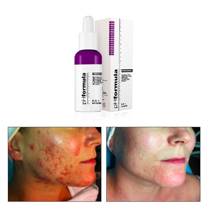 An active and effective complex for complete restoration, chronic redness and rosacea prone skin. Specifically formulated with anti-microbial activity to help reduce redness and prevent relapses.