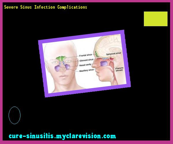 Severe Sinus Infection Complications 110148 - Cure Sinusitis