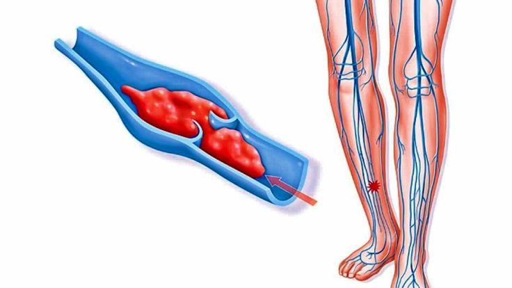 Если замучил варикоз: целебный рецепт снадобья, способного растворять тромбы