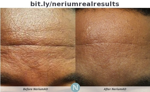 An age-defying breakthrough product?  http://vibrantme.arealbreakthrough.com/