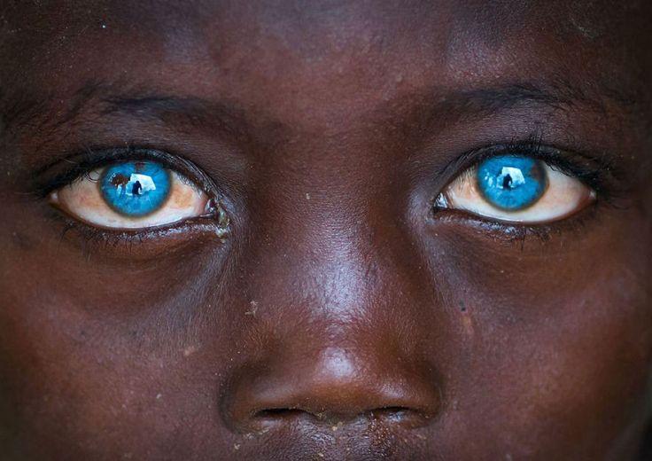 Este menino tem uma doença genética rara que faz com que seus olhos sejam fascinantes 08